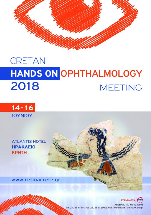 Hands Ophthalmology